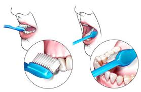 pranje zuba