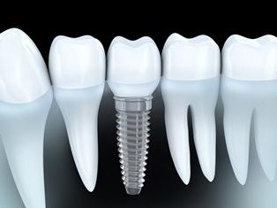 Imajte zube jake kao celik…